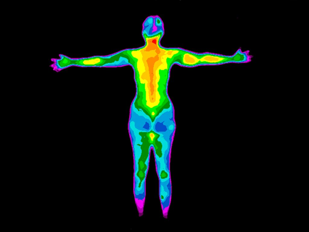 Full body thermography