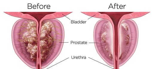 Ozone for Prostate